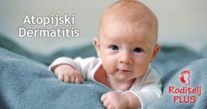 Atopijski dermatitis
